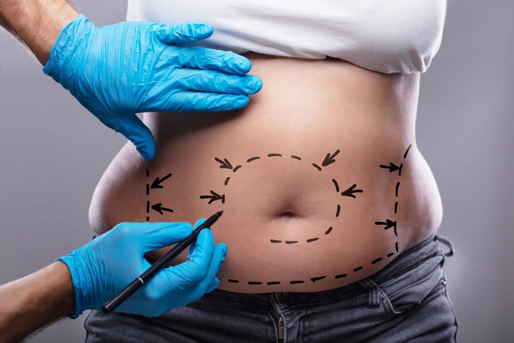 Chirurgia platica post bariatrica