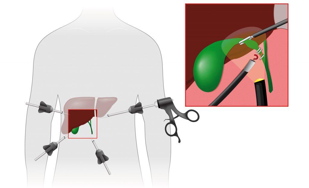 Cistifellea schema operazione laparoscopica
