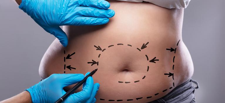 Addominoplastica: con il rassodamento, via le prominenze e l'eccesso di cute