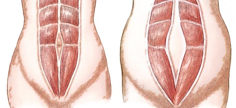 Diastasi dei retti: come risolvere il problema dei fastidi funzionali e quelli estetici
