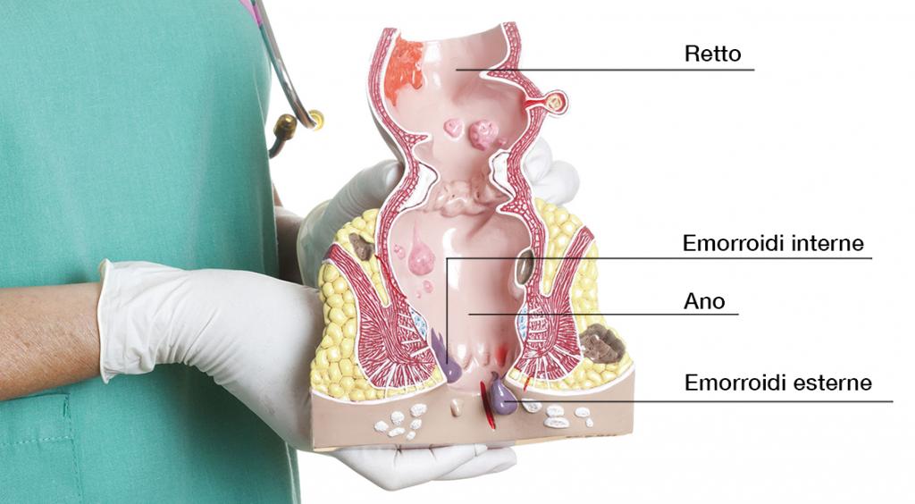 Schema anatomico retto e ano con evidenze emorroidi interne ed esterne