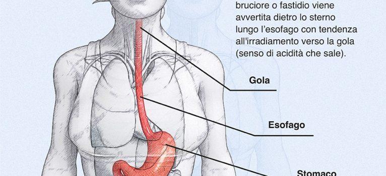 Pirosi: quando il bruciore di stomaco può essere sintomo di altre patologie